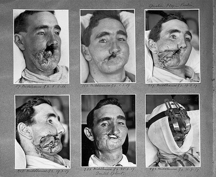 Severely wounded faces of World War I veterans